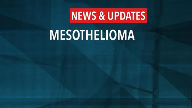 mesothelioma News & Updates