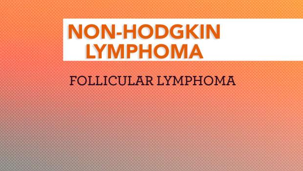 Non Hodgkin Lymphoma NHL Follicular