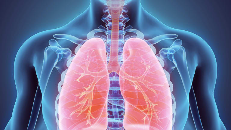Side Effect of Cancer Treatment: Lung Damage (Acute Pulmonary Toxicity)