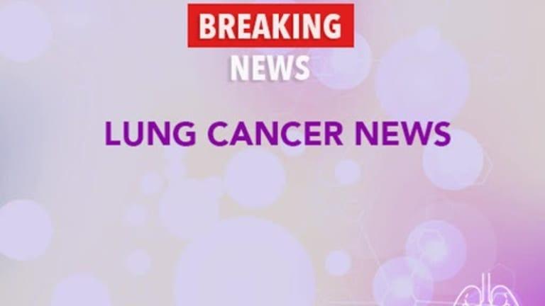 Camptosar®/Platinol®  Produces High  Response Rates in Lung Cancer