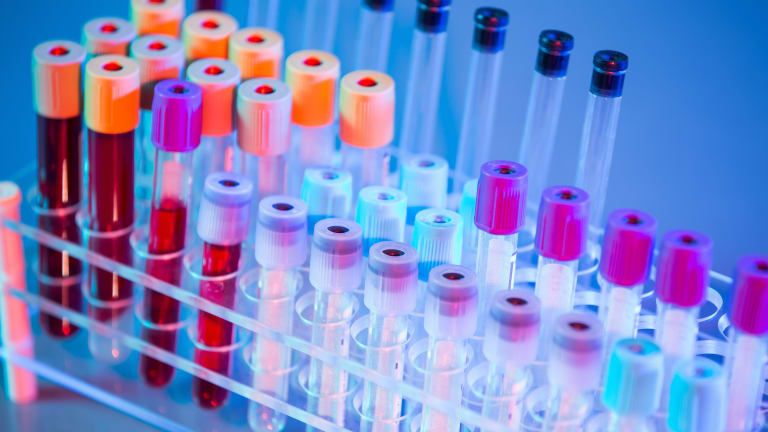 """An Oncologist Explains """"Routine"""" Blood Tests Performed in Cancer Patients."""