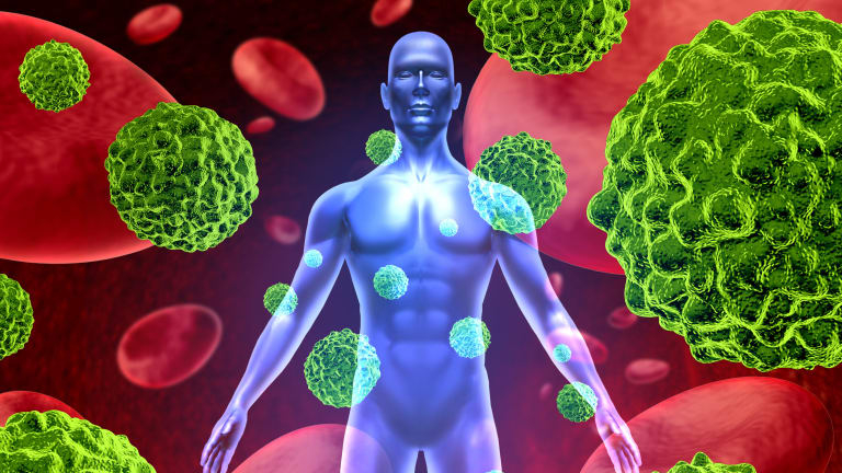 Immunotherapy  Treatment of Cancer