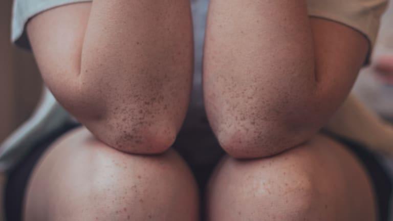 Psoriasis More Than Skin Deep