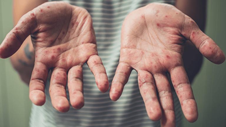 Hand-Foot Syndrome Palmar Plantar Erythrodysesthesia