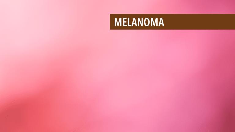 Treatment of Stage IV Melanoma