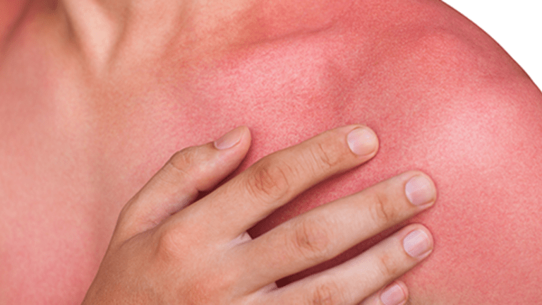 Side Effects of Cancer Treatment Photosensitivity