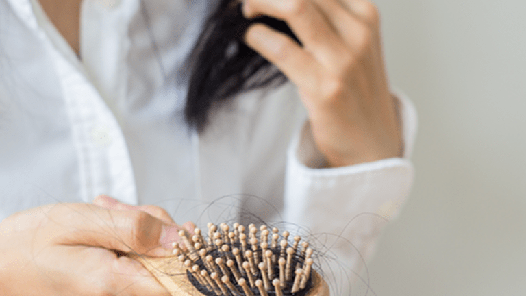 Side Effect of Treatment: Hair Loss