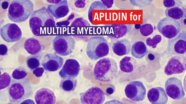 Aplidin® Improves Progression-Free Survival in Multiple Myeloma
