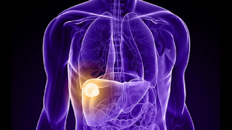 TACE Treatment Improves Outcomes in Liver Cancer