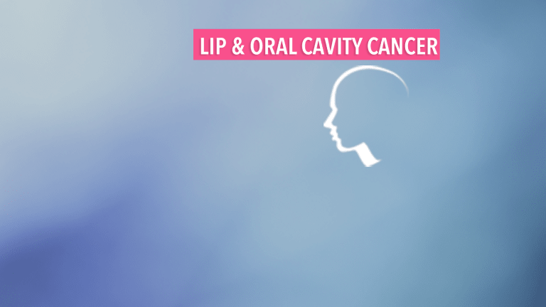 Overview of Lip & Oral Cavity Cancer