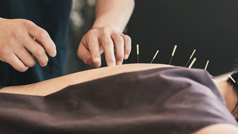 Complementary Therapies in Cancer Care: Acupuncture