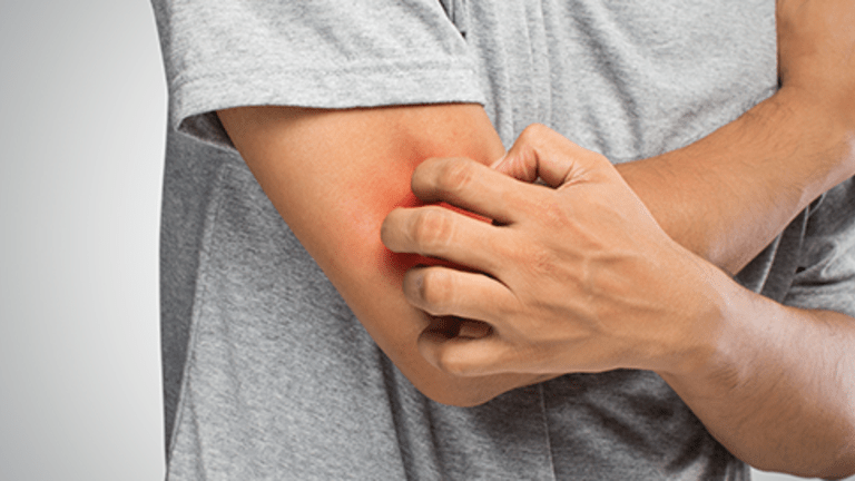 Side Effects of Cancer Treatment: Itching (Pruritus) Overview