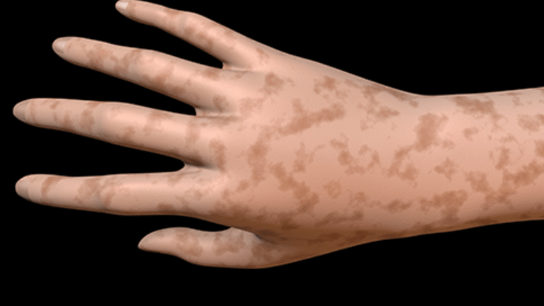 Side Effects of Cancer Treatment: Hyperpigmentation