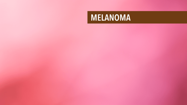 Overview of Melanoma