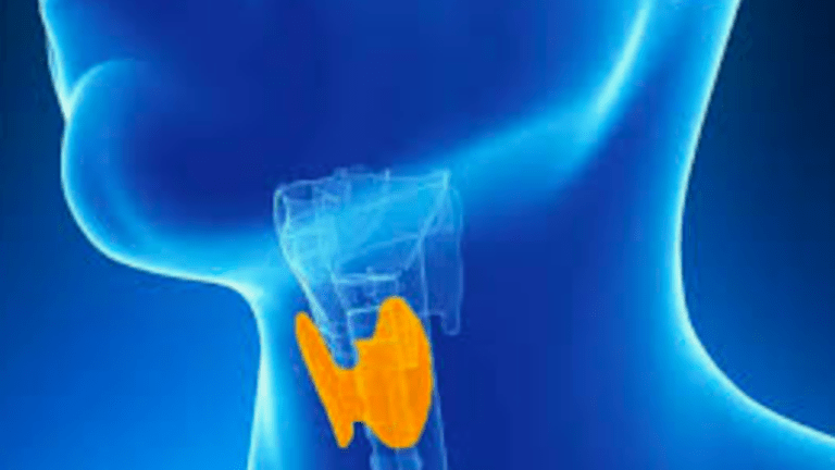 Hypothyroidism Common After Radiation Treatment for Head and Neck Cancer