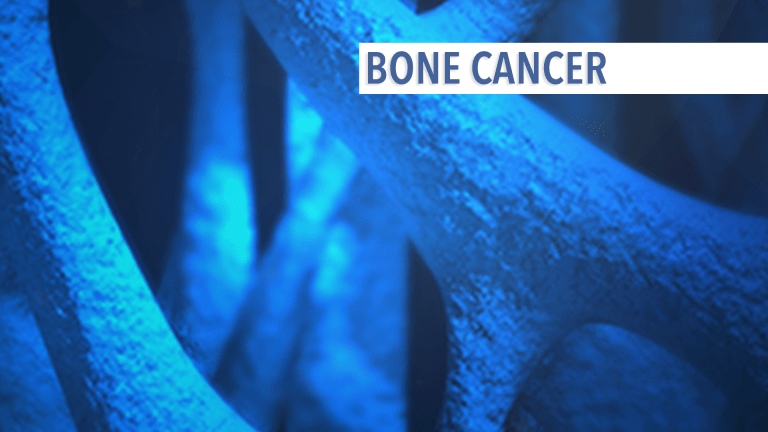 An Overview of Bone Metastases