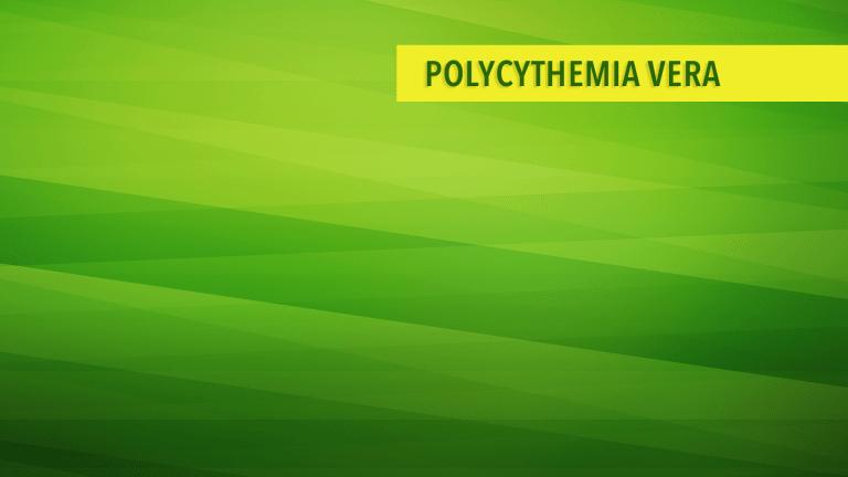 Overview of Polycythemia Vera