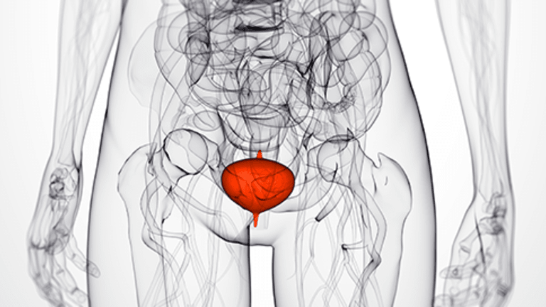 Bladder Side Effects of Cancer Treatment