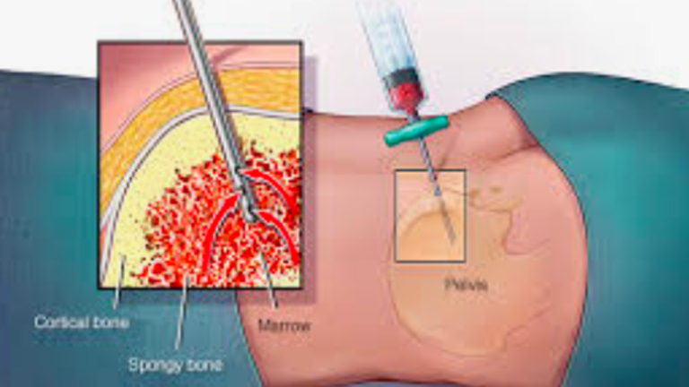 What You Should Know About Bone Marrow Biopsy