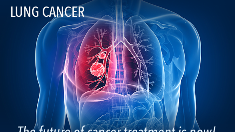 Adoptive Immunotherapy-Chemotherapy May Improve Survival in Earlier Stage NSCLC