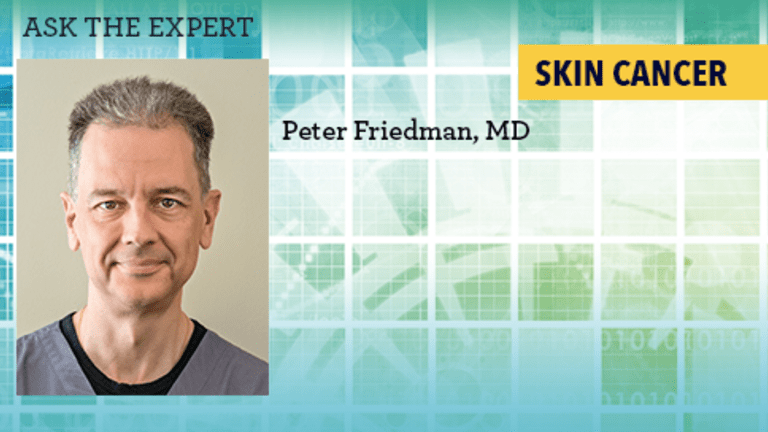 Ask the Doctor: Advances in the Treatment of Skin Actinic Keratoses