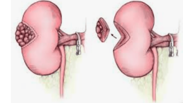 Comparison of Partial Nephrectomy with Radical Nephrectomy in  Renal  Cancer