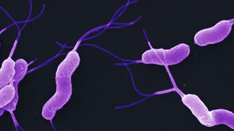 Helicobacter Pylori Infection and Gastric Cancer