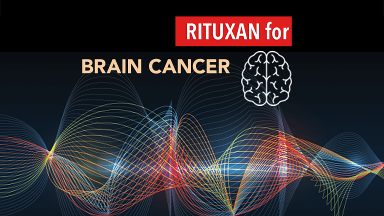 Rituxan® May Be Effective in Central Nervous System Lymphomas