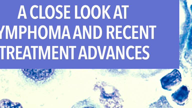 A Close Look at Lymphoma and Recent Treatment Advances