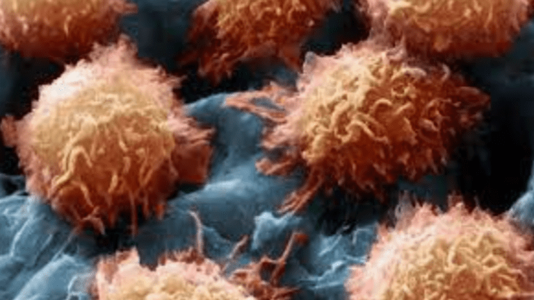 Zelboraf® Active in Hairy Cell Leukemia That Has Progressed After Other Treatment