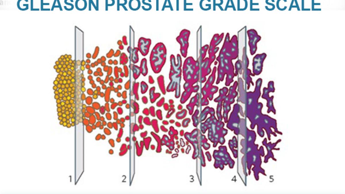 adenocarcinoma prostate gleason score 9 Gyertyák Prostatitis a propolis vélemények