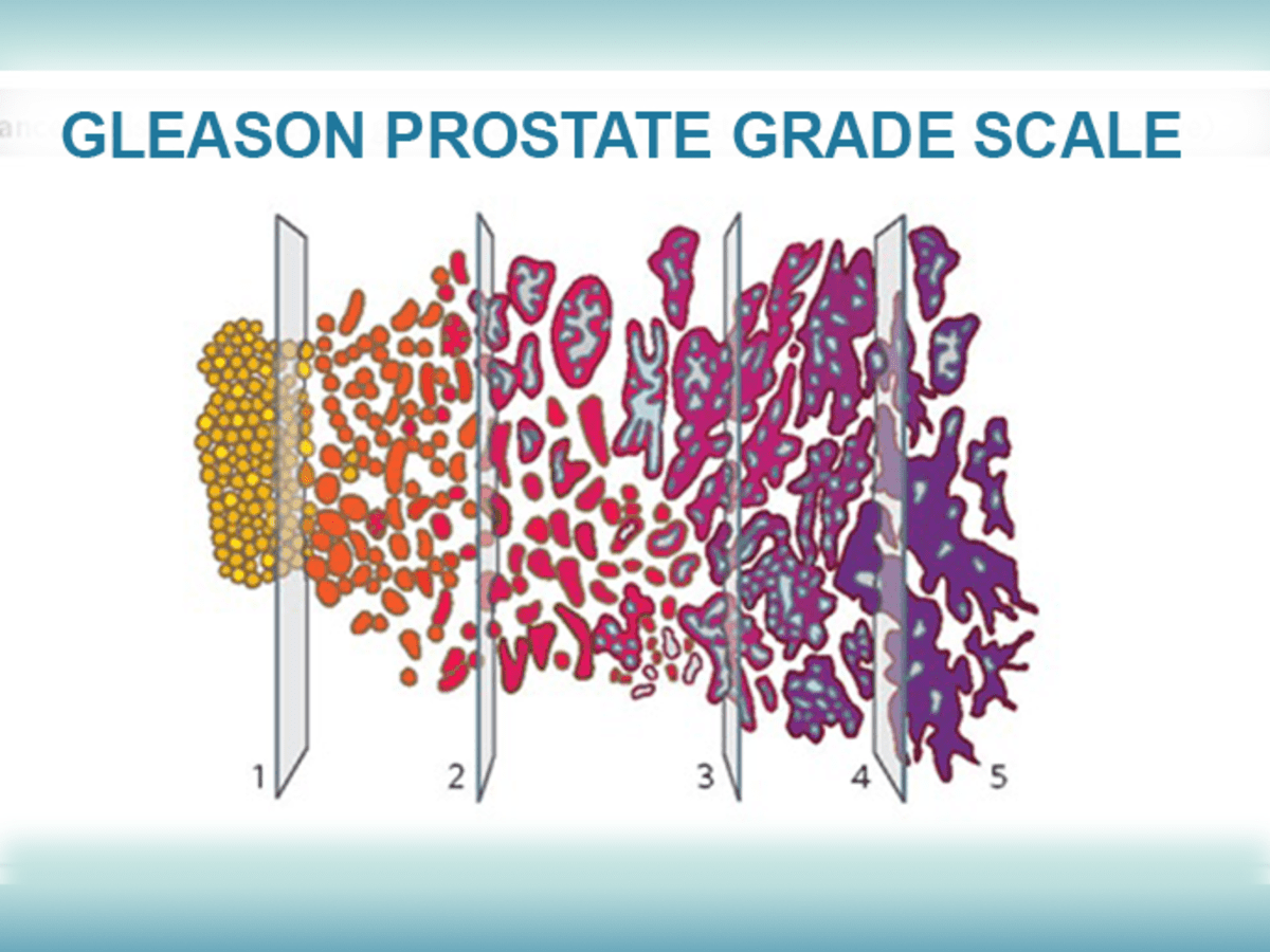 Krónikus prosztatitis okai A prostatitis ICD súlyosbodása