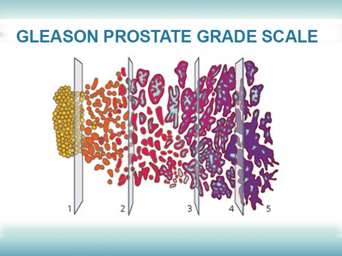 adenocarcinoma prostate gleason score 7